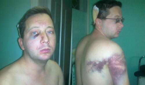 Владислав Загоровка, избитый на Банковой нуждается в срочной финансовой помощи